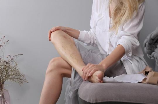 Maladie veineuse : si vos parents ont des varices, consultez !