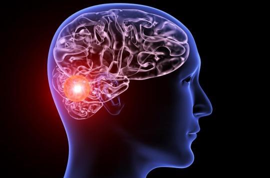Anévrisme cérébral: un capteur sans fil implanté dans les vaisseaux pour surveiller la guérison