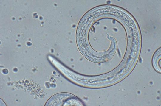Un Australien décède 8 ans après avoir avalé une limace infectée à un parasite