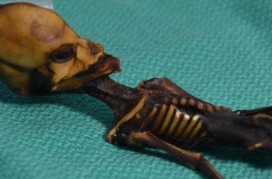 Le squelette  extraterrestre d'Atacama? Une petite fille au corps déformé par une maladie génétique...