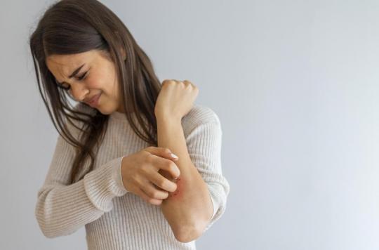 Des problèmes cutanés dans les symptômes durables de la Covid-19