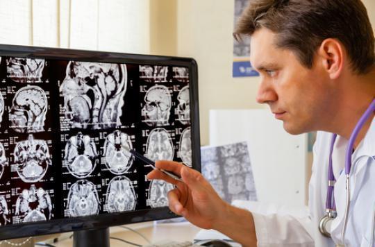 AVC : des patients remarchent grâce aux cellules souches