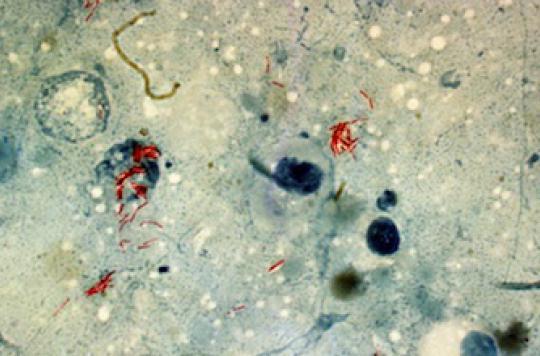 La tuberculose présente chez l'homme depuis plus 70 000 ans