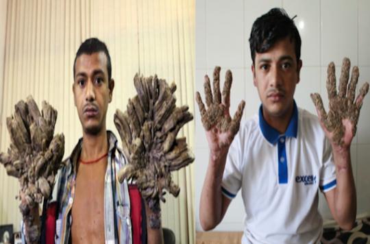 Abul Bajandar : l'homme arbre a subi 16 opérations