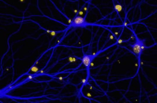 Alzheimer : la protéine BRCA1 liée aux troubles de la mémoire