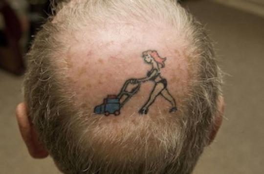 Calvitie: une technique innovante pour faire repousser les cheveux
