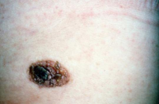 Les grains de beauté associés au risque de cancer du sein