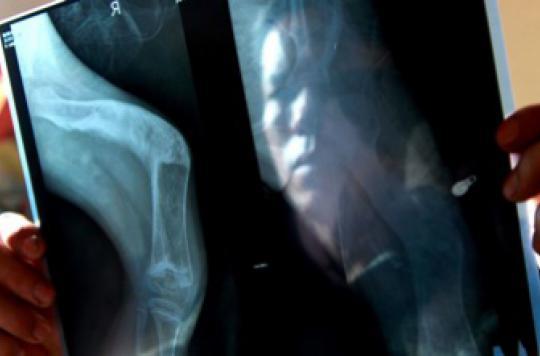 Maladie des os de verre : la protéine à l'origine de la fragilité