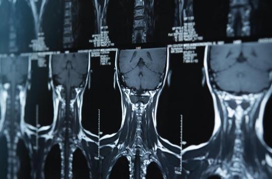 Cancers de la tête et du cou : quels sont les symptômes ?