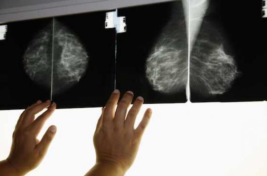 Cancer du sein :  22 séances de rayons réalisées du mauvais côté