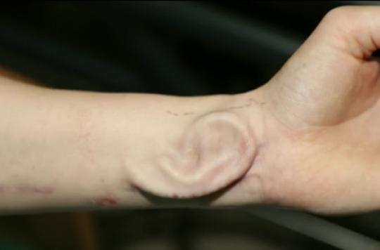 Première mondiale : une oreille synthétique cultivée sur l'avant-bras d'une patiente