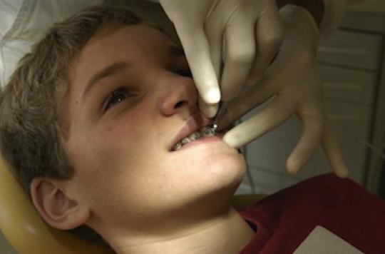Dentaire : les soins d'orthodontie accusés d'être trop chers