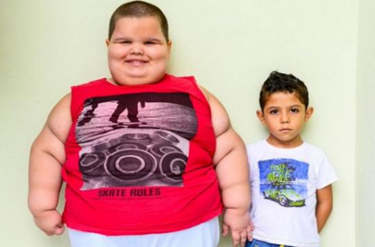 Syndrome de Prader-Willi : un Brésilien pèse 80 kg à 5 ans