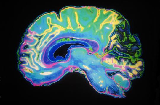 Le cerveau subit de profondes modifications à l'adolescence