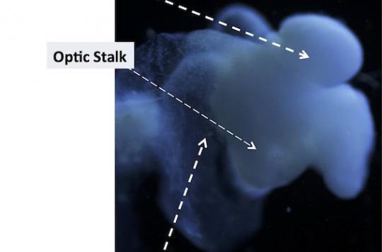 Un mini-cerveau humain produit à partir de cellules de la peau