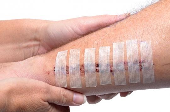 Pourquoi il ne faut jamais sécher une cicatrice