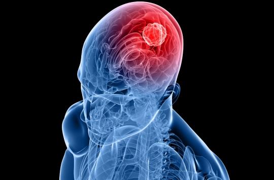 Cancer : le cerveau jouerait un rôle important dans le développement des tumeurs