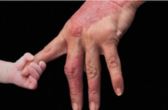 Psoriasis : un traitement par anticorps prometteur