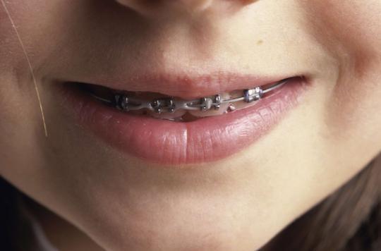 Les dangers des appareils dentaires \