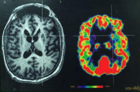 Des chercheurs réussissent à contrôler l'activité des cellules du cerveau