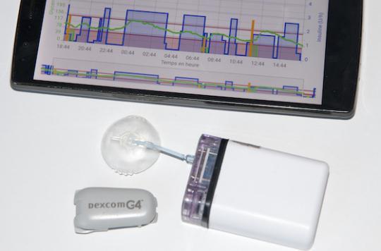 Diabète : un pancréas artificiel développé en France