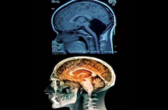 A 24 ans une Chinoise apprend qu'elle n'a pas de cervelet