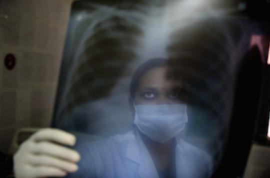 La lutte contre la tuberculose marque des points
