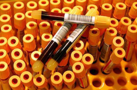 Sida : les experts militent pour un dépistage sous toutes ses formes