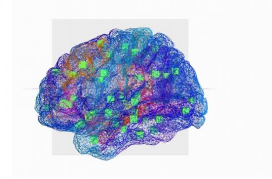 Epilepsie :  mieux traiter la maladie grâce à un cerveau \
