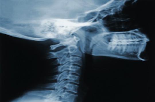 Ostéoporose : les associations réclament un dépistage systématique