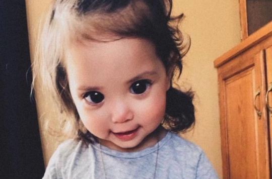 cette belle petite fille doit ses grands yeux noirs une maladie g n tique rare. Black Bedroom Furniture Sets. Home Design Ideas