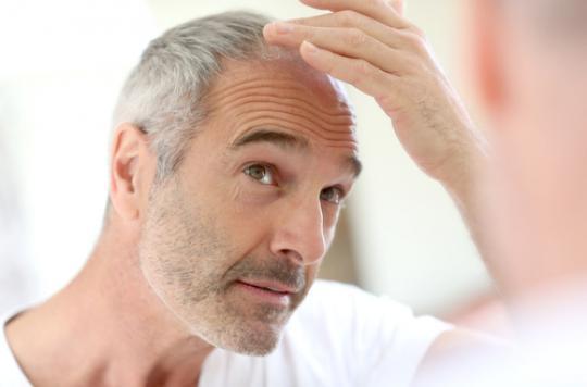 Calvitie. 287 groupes de gènes responsables de la perte des cheveux