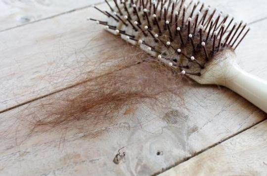 Cancer : un gène responsable de la perte des cheveux pourrait augmenter l'efficacité de l'immunothérapie