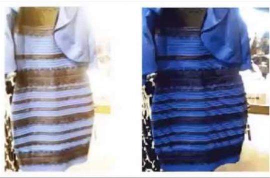 Cerveau : de nouveaux éléments sur le mystère de la robe bleue