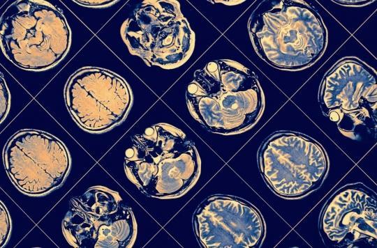 Maladie d'Alzheimer : faut-il des traitements en fonction du sexe ?