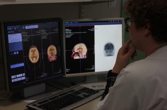Mort subite : la grande inconnue des épilepsies