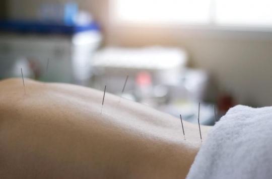 Elle vit 30 ans avec des aiguilles d'acupuncture dans la colonne vertébrale