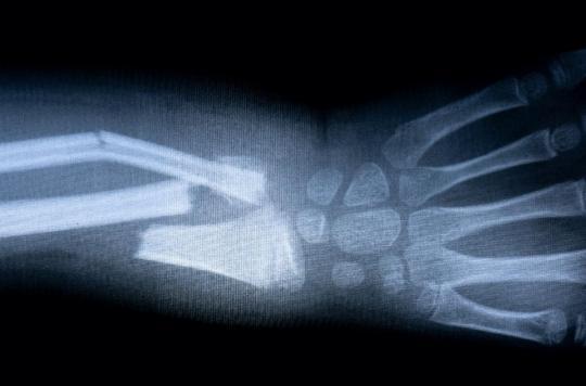 On a trouvé le moyen de réduire une fracture plus rapidement