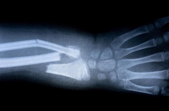 Aux urgences, une intelligence artificielle française améliore considérablement la prise en charge des fractures