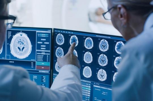 Tumeur cérébrale : bientôt des vers robots à implanter dans le cerveau ?