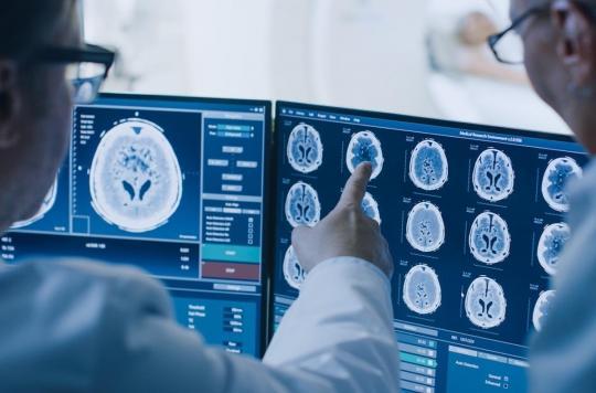Maladie d'Alzheimer : une trop forte exposition à l'aluminium en cause ?