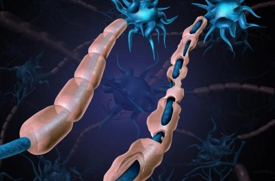 Sclérose en plaques: une protéine d'enveloppe d'un rétrovirus à l'origine de la maladie