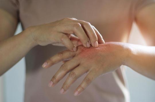 Journée mondiale des lymphomes : quel impact sur la vie des malades ?
