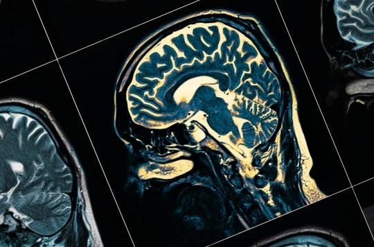 Journée mondiale de Parkinson : \