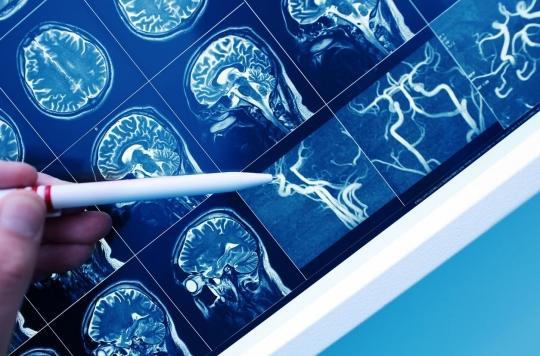 Les gènes et la santé cardiovasculaire sont des facteurs de risque de démence