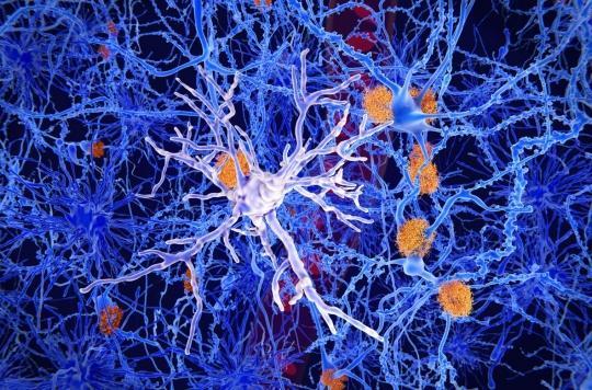 Alzheimer: pourquoi les neurones de la mémoire sont les plus vulnérables à la maladie?