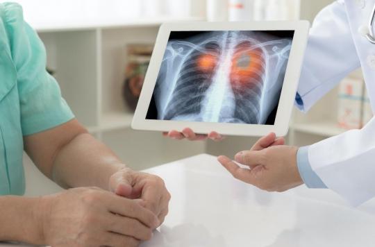 Cancer du poumon : l'intérêt du dépistage pour réduire la mortalité