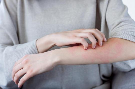 L'eczéma pourrait se traiter avec… des bactéries