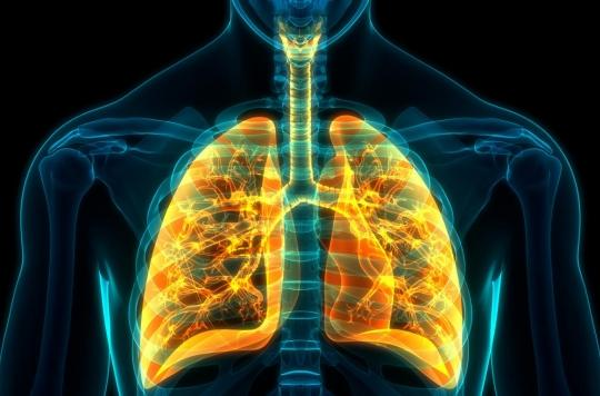 Des chercheurs français progressent dans le traitement de l'hypertension artérielle pulmonaire
