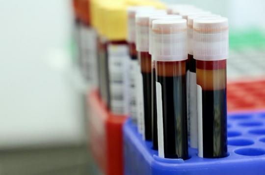Un vaccin expérimental contre le Covid-19 présente des résultats encourageants